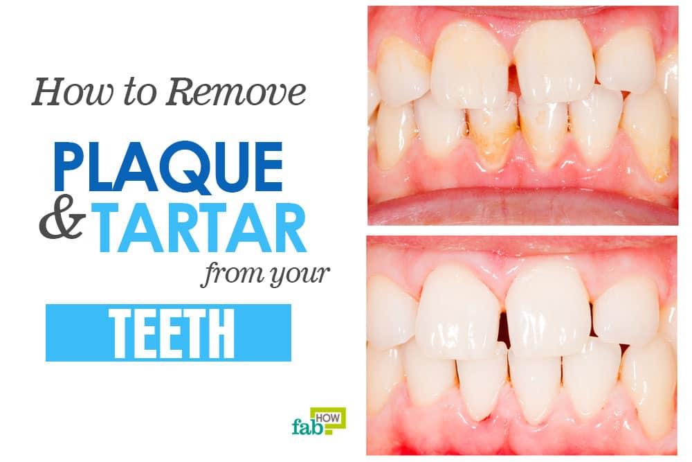 ssiimm feat remove plaque and tartar - راههای آسان سفید کردن دندان