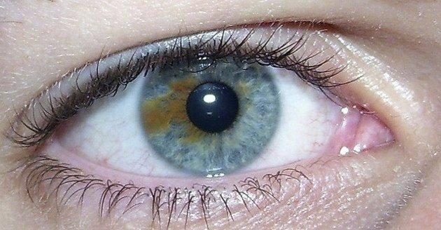 ssiimm 6tyx106 - درمان آبریزش چشم با شیوههای فوق العاده اثربخش