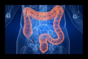 ssiimm sindrome del intestino irritable sii t ujtrtu - قبل از انجام کولونوسکوپی چکار کنیم و چی بخوریم؟