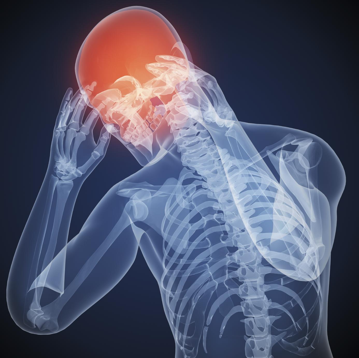 ضربه مغزی ، تشخیص ضربه مغزی
