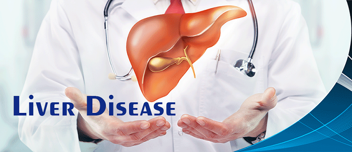 ssiimm liverdisease - دلایل به وجود آمدن کبد چرب