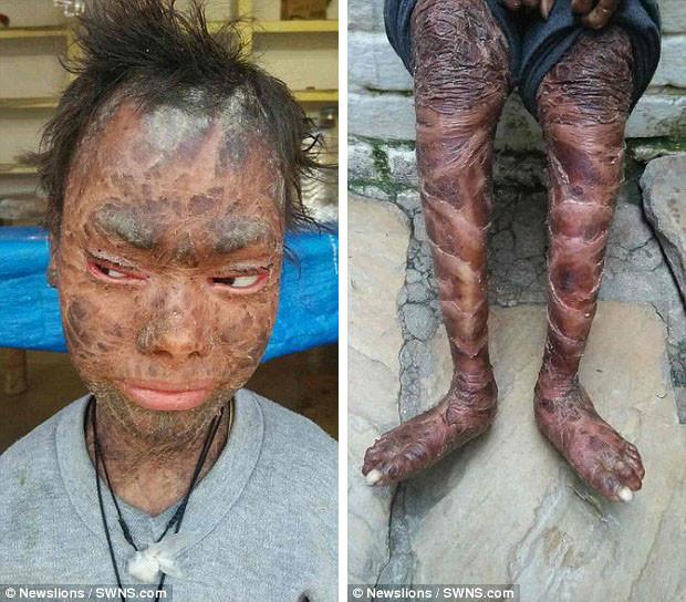 ssiimm 160 - دختری با بیماری پوست ماری!