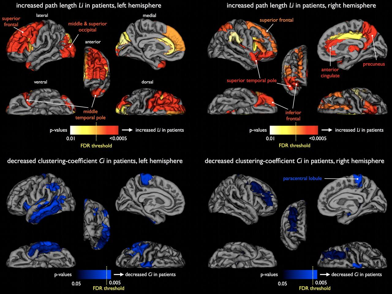 اشتراک ژنتیکی بین اسکیزوفرنی و اختلال دوقطبی